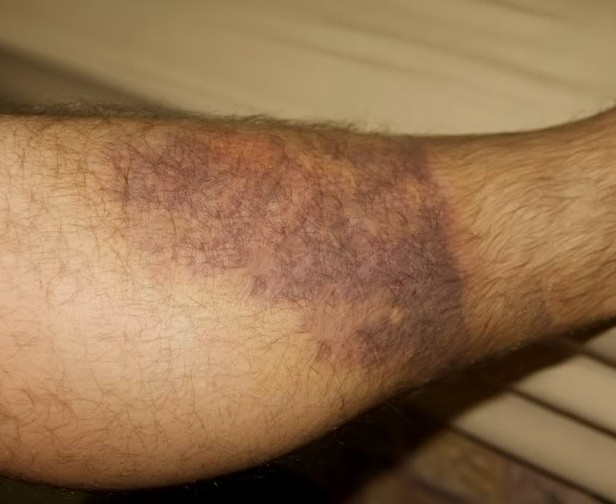 how to treat bruising leg after a fall