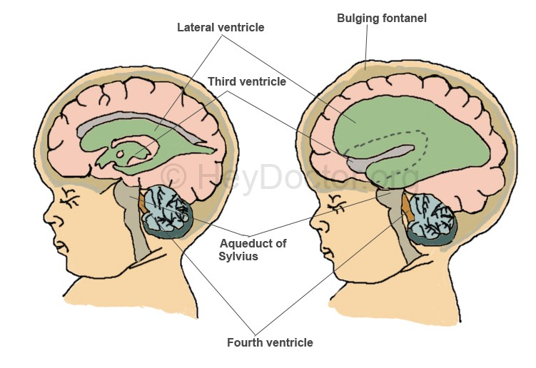 Image result for hydrocephalus communicating