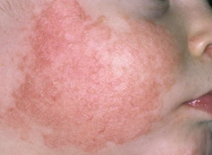 What causes dry spots on face