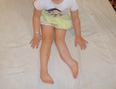 Fibular Hemimelia - Symptoms, Causes, Treatment