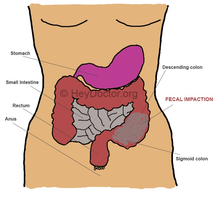 impacted bowel - symptoms, diagnosis, treatment, complications, Skeleton