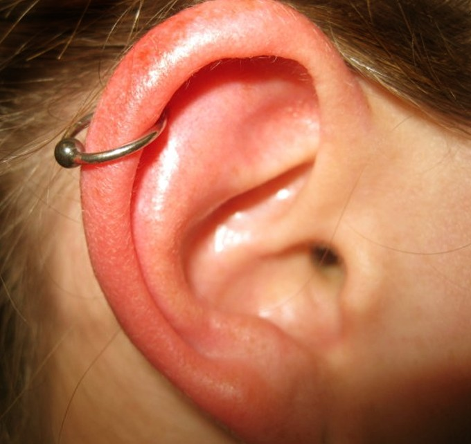 Infected Cartilage Piercing Signs Symptoms Bump Treatment