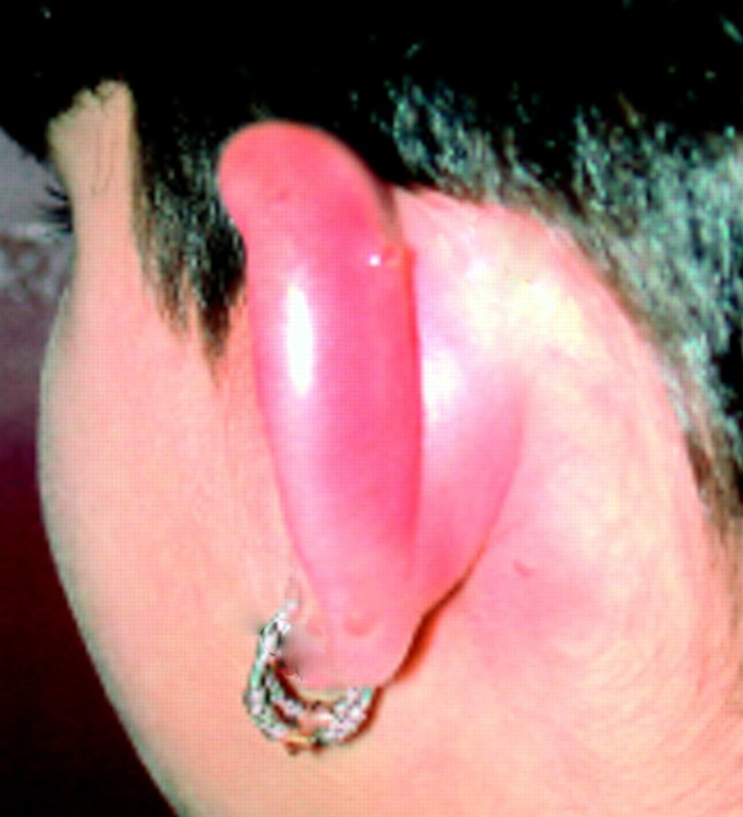 Infected Cartilage Piercing Signs Symptoms Bump