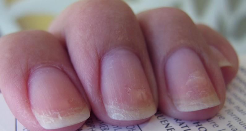The 6 Most Annoying Problems You Have With Your Nails, And How To ...