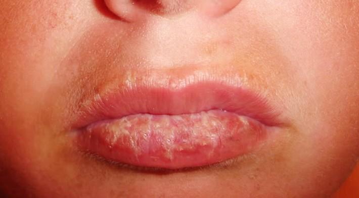 Sunburned Lips Pictures Signs Symptoms Treatment