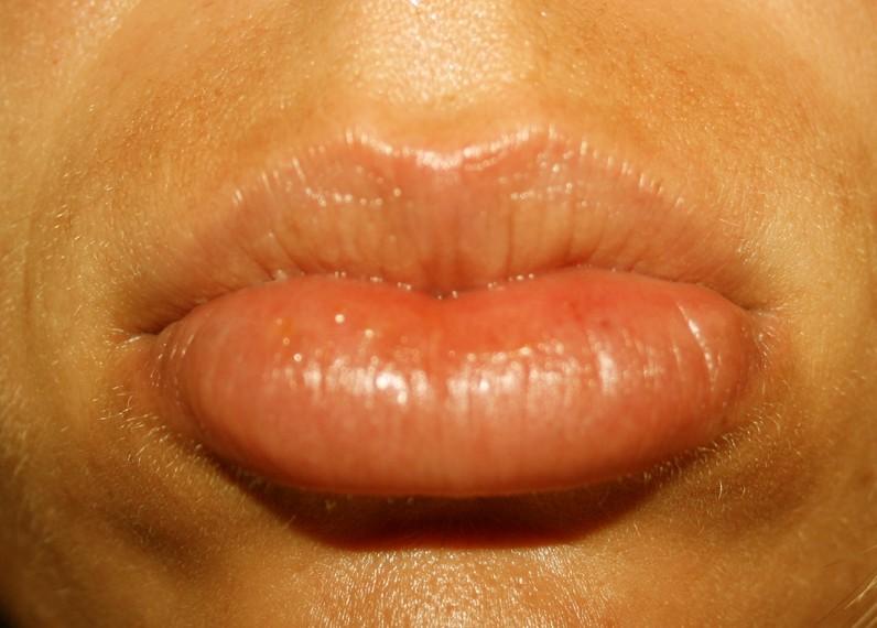 Natural Cures For Sunburned Lips