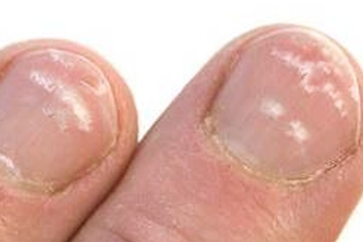 White Spots On Toenails Pictures 2