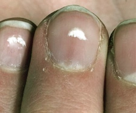 Nail Polish Turns White After Shower