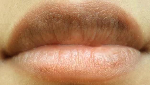 Lip Discoloration - Causes, Treatment, Self care, Prevention