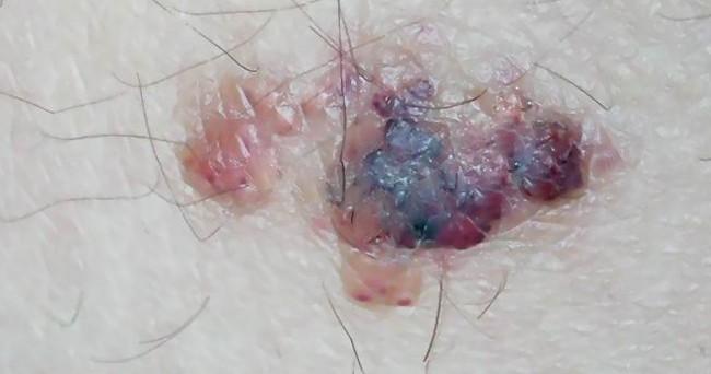 angiokeratoma pics