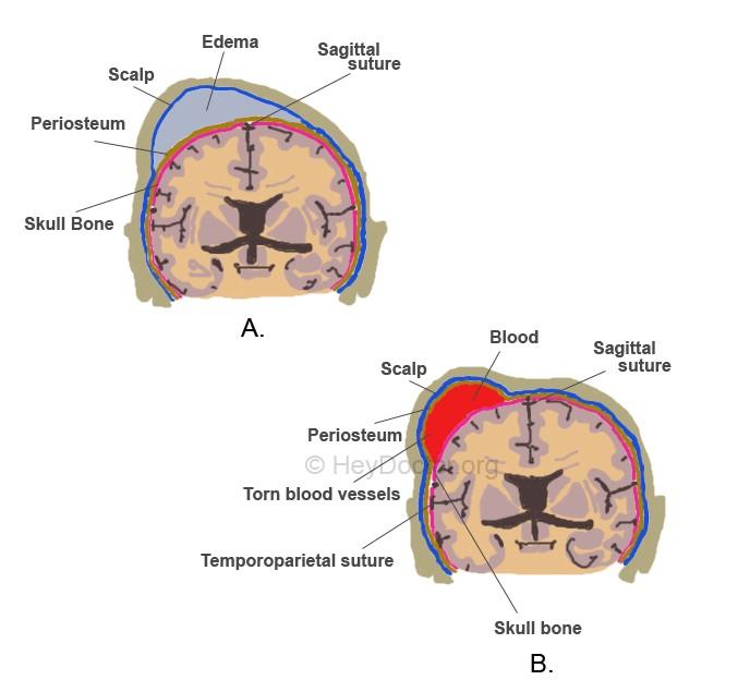 caput succedaneum vs cephalohematoma