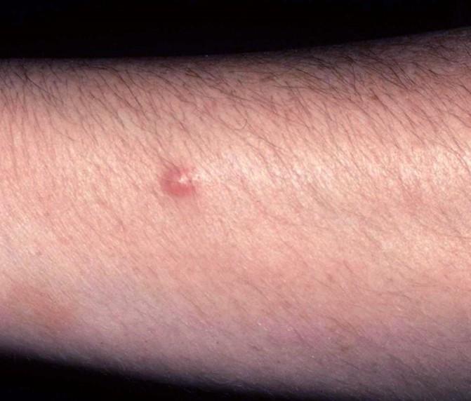 dermatofibroma