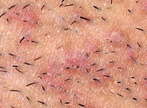 Infected Ingrown Hair Pictures Symptoms Treatment Removal