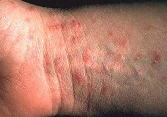 scabies rash pictures 3