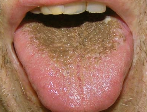 Models sore throat black spot