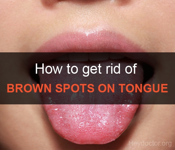 Brown Spots On Tongue Causes Treatment And Pictures