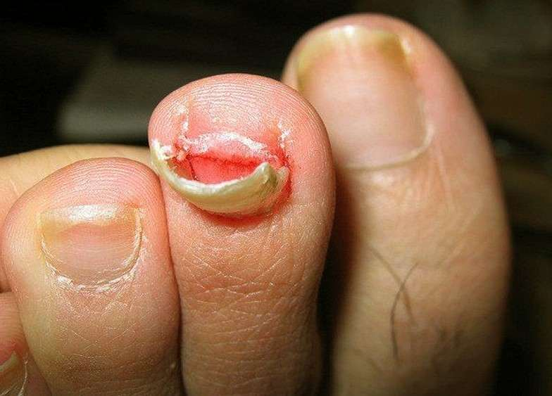 Picture 1 Toenail Falling Off