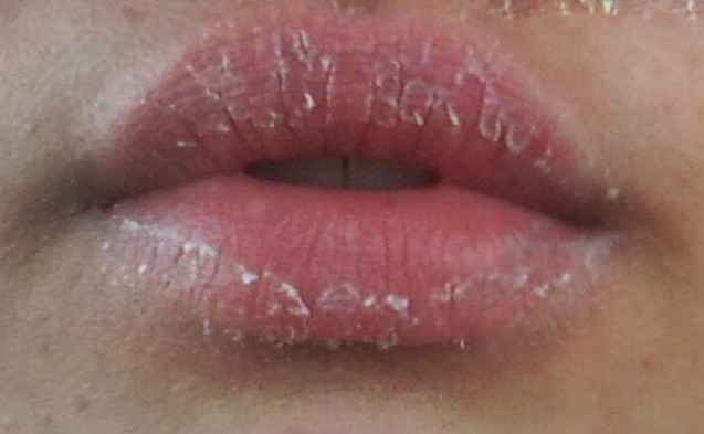 Picture Collection Of Eczema On Lips